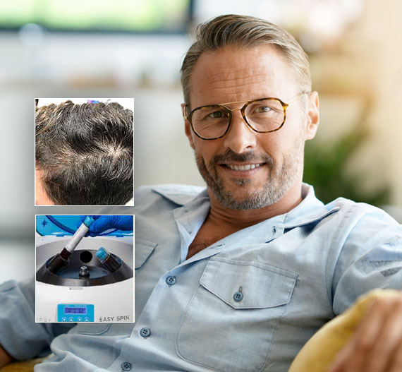 PRP hair loss treatment therapy st louis missouri